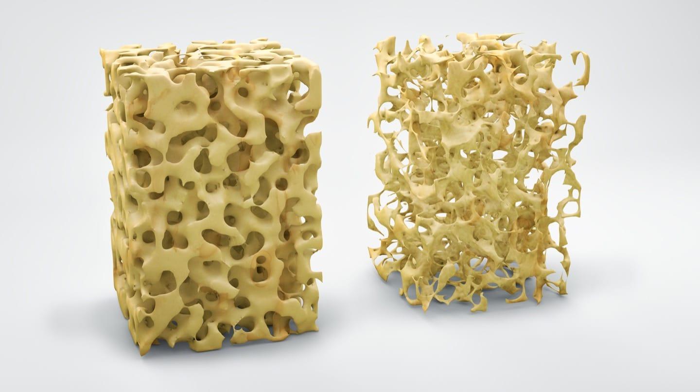 Salud músculo-esquelética Osteoporosis