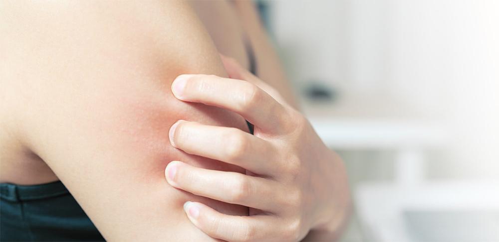 Dermatología Dermatitis atópica
